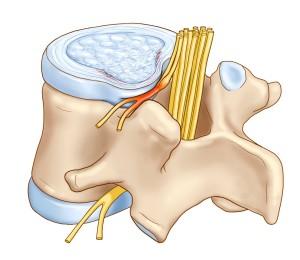 Photo of Що таке протрузія дисків хребта поперекового відділу? Способи лікування і профілактика.