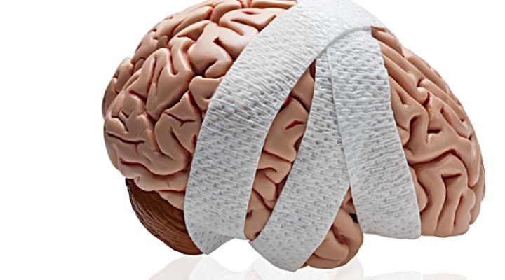 Photo of Арахноидит головного мозку: який прогноз захворювання?