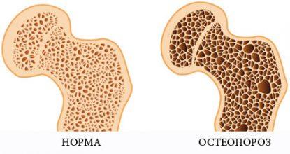 Photo of Ознаки, прогноз і лікування раку дванадцятипалої кишки