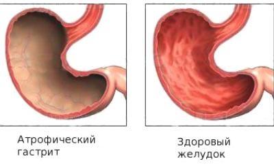 Photo of Сепсис, що це? Симптоми, діагностика, лікування та ускладнення сепіса