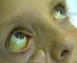 Photo of Як знизити білірубін в крові, не звертаючись до лікаря?