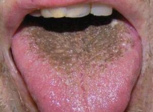 Photo of Чорний наліт на язиці