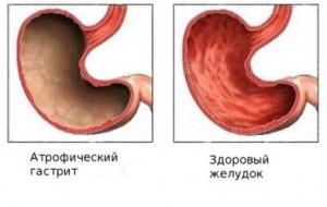Photo of Гастрит шлунку: чим лікувати і що їсти?