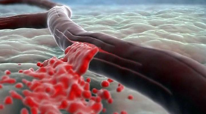 Photo of Геморагічний інсульт головного мозку: причини, симптоми, наслідки