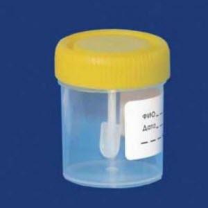 Photo of Аналіз на дисбактеріоз