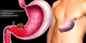 Photo of Попередження для тих, хто не замислюється про своє харчування — катаральний гастродуоденіт