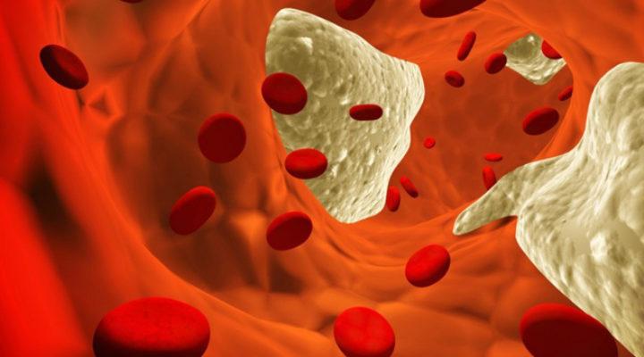 Photo of Мікроангіопатія головного мозку