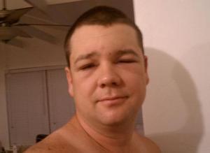 Photo of Чим може бути викликаний набряк обличчя? Причини, лікування, як уникнути.