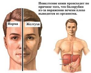 Photo of Чому може бути підвищений білірубін в крові? Причини, діагностика.