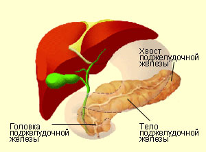 Photo of Що таке псевдотуморозний панкреатит?