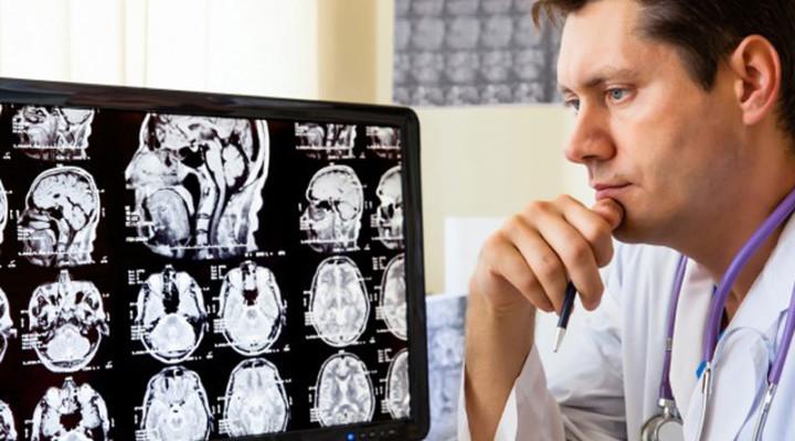 Photo of Діагноз — ішемія головного мозку
