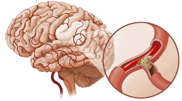 Photo of Спазм судин головного мозку: причини, симптоми, лікування