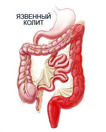 Photo of Профілактика діабетичної стопи, вибір взуття