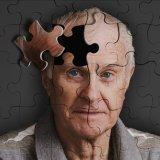 Photo of Симптоми і причини розвитку хвороби Альцгеймера