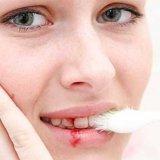 Photo of Кровоточивість ясен при чищенні зубів