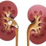 Photo of Чому з'являються камені в нирках