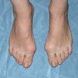 Photo of Причини вальгусной деформації стопи