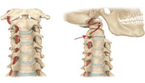 Photo of Здавлювання або здавлювання хребетної артерії: що потрібно знати про недугу