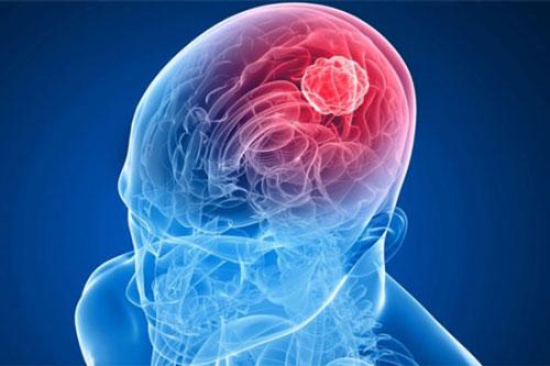 Photo of Що може викликати рак головного мозку?