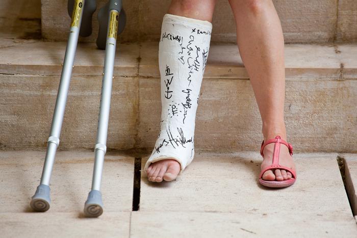 Photo of Скільки болить нога після перелому?