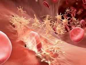 Photo of Причини виникнення лімфангіта і лікування захворювання