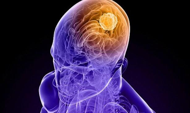 Photo of Генна терапія лікує смертельний рак мозку