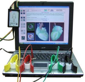 Photo of Апарат кардіовізор і обстеження серця, яке викликає суперечки у лікарів