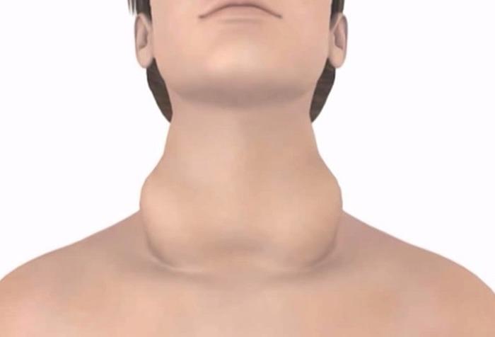 Photo of Чому збільшується щитовидна залоза при вагітності