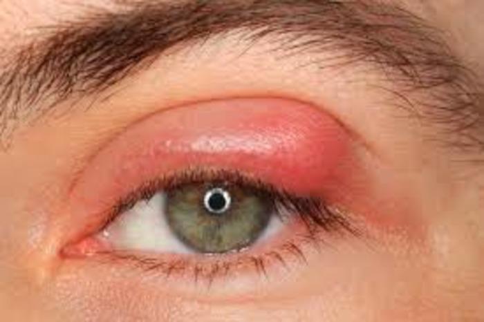 Photo of Опухла верхня повіка ока і болить