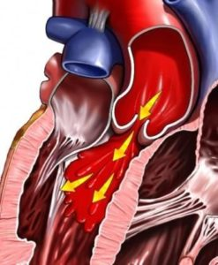 Photo of Як проявляється і лікується трикуспидальная регургітація