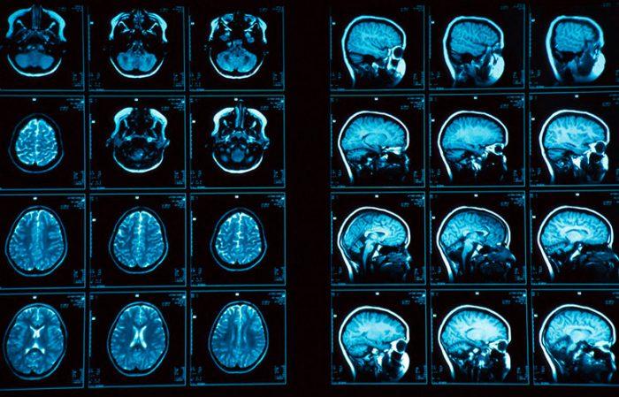 Photo of Мікроаденома гіпофіза: що це і чим загрожує?
