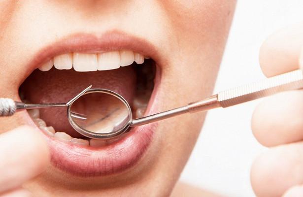 Photo of Чистка зубів знижує ризик розвитку раку