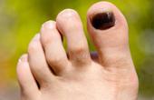 Photo of Що таке меланома нігтя на нозі?