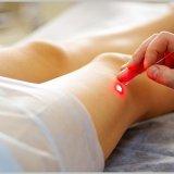 Photo of Як прибрати судинні зірочки на ногах