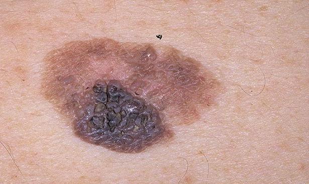 Photo of Зв'язок між відвідуванням солярію і ризиком чорного шкірного раку встановити не вдалося