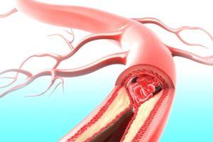 Photo of Головні причини ішемії, способи діагностики та лікування