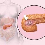 Photo of Що таке інсуліноми її симптоми та види