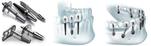 Photo of Імплантація зубів