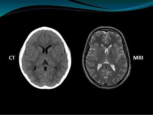 Photo of Методи медичних досліджень: комп'ютерна томографія