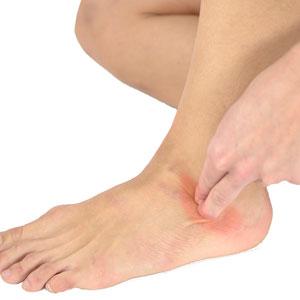 Photo of Як визначити пошкодження в кістках стопи