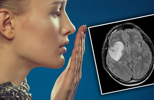Photo of Запах з рота розповість, чи хворі ви онкологією