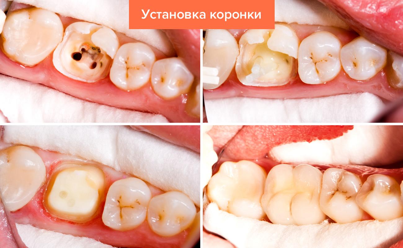 Photo of Коронки на зуби: види, як ставлять