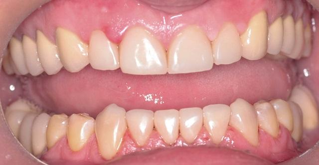 Photo of Бруксизм (скрип зубами уві сні): причини, що робити?