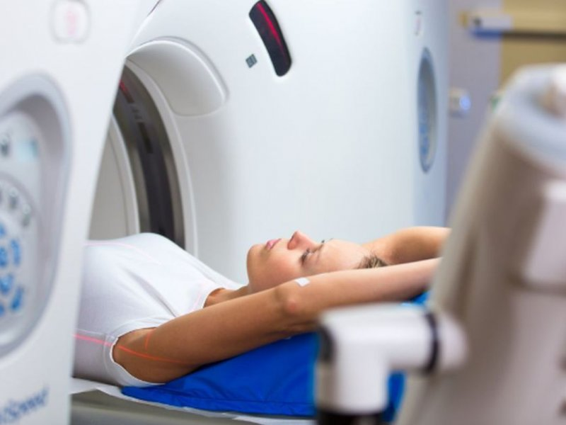 Photo of Думка експерта: чи може томографія викликати рак?
