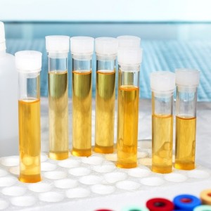 analysis of urine in lab