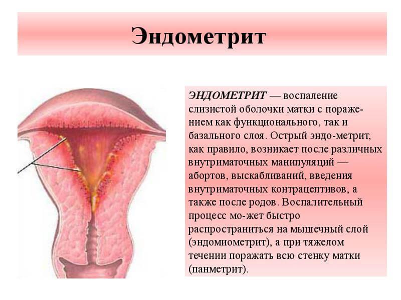 Как лечить воспаление слизистой оболочки матки