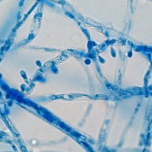 Trichophyton interdigitale под микроскопом.