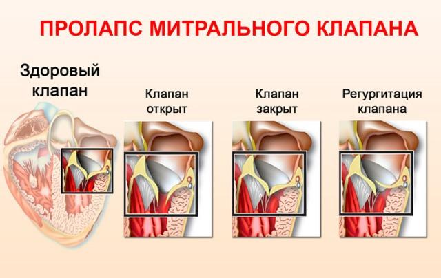Опасен ли пролапс митрального клапана