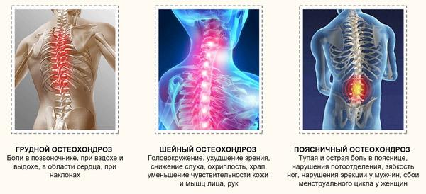 Как лечить головные боли при шейном остеохондрозе