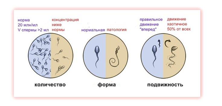 ne-podvizhnost-spermotozoidov